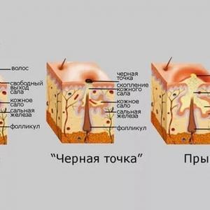 действия соды на кожу лица